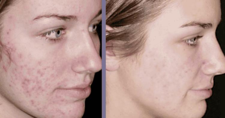 Как быстро заживить болячку на лице