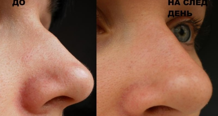 Ультразвуковая чистка лица видео до и после